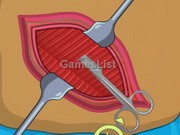 play Operate Now: Appendix Surgery