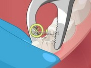 play Operate Now : Dental Surgery