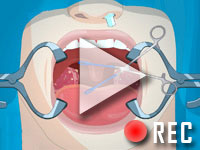 play Operate Now: Tonsil Surgery Walktrough