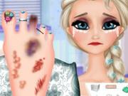 Elsa Foot Injured game