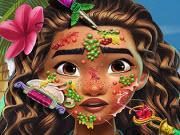 Moana Skin Doctor game