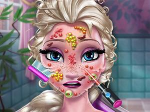 play Ice Queen Skin Doctor